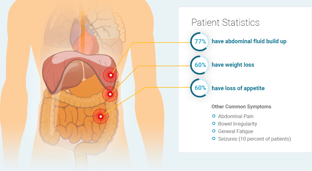 Peritoneal mesothelioma symptoms: 77% of patients have abdominal fluid build up (Ascites), 60% show weight loss, and 60% have a loss of appetite. Other common symptoms include abdominal pain, bowel irregularity, general fatigue, and seizures.