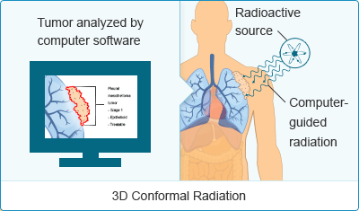 3-Dimensional Conformal Radiation Therapy