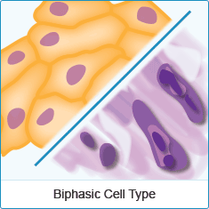 Biphasic Mesothelioma Cell Type