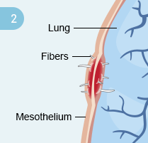 Step 2: Mesothelium irritation
