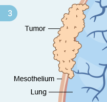Step 3: Development of Mesothelioma