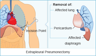 Extrapleural Pneumonectomy Mesothelioma Surgery Treatment