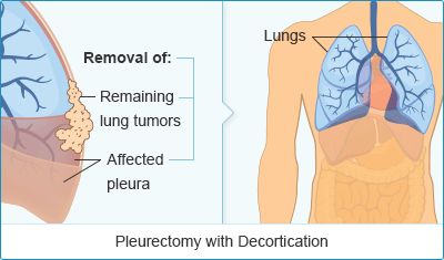 Pleurectomy with Decortication Mesothelioma Surgery Treatment