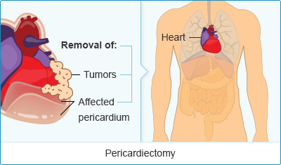 Mesothelioma Pericardiectomy Surgery