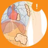 Stage 2 Mesothelioma