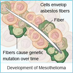 Development of Mesothelioma Cells