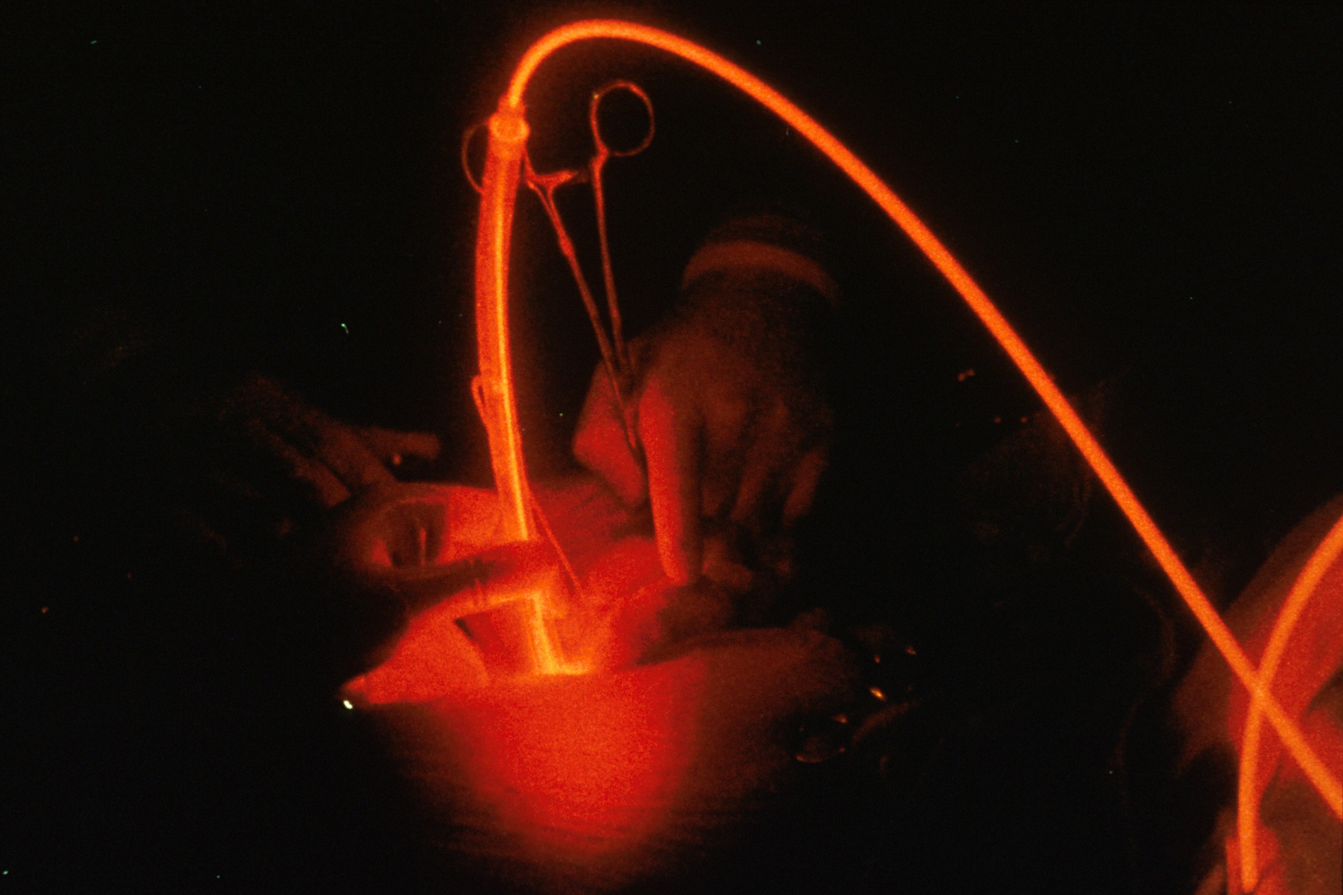 The Rise Of Intraoperative Light Therapy For Mesothelioma