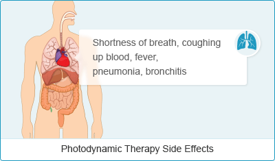 PhotodynamicTherapySideEffects