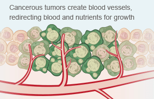 Mesothelioma cancer cells create blood vessels, redirecting blood and nutrients.