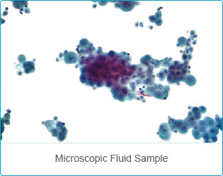 Mesothelioma Cytology - Malignant Cancer Diagnosis by Fluid