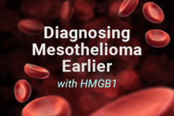 diagnosing mesothelioma HMGB1 blood test