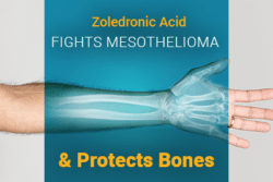 X-Ray image of arm with text: Zoledronic Acid Fights Mesothelioma and Protects Bones