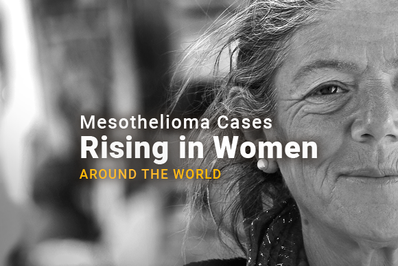 Image of a woman's face. Image reads: Mesothelioma Cases Rising in Women Around The World