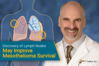 """Discovery of Lymph Nodes May Improve Mesothelioma Survival"" - Dr. Joseph Friedberg with illustration of lungs affected by mesothelioma"