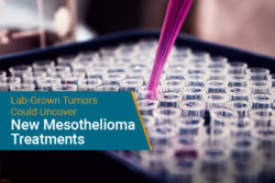 mesothelioma treatment using lab-grown tumors