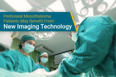 peritoneal mesothelioma surgery